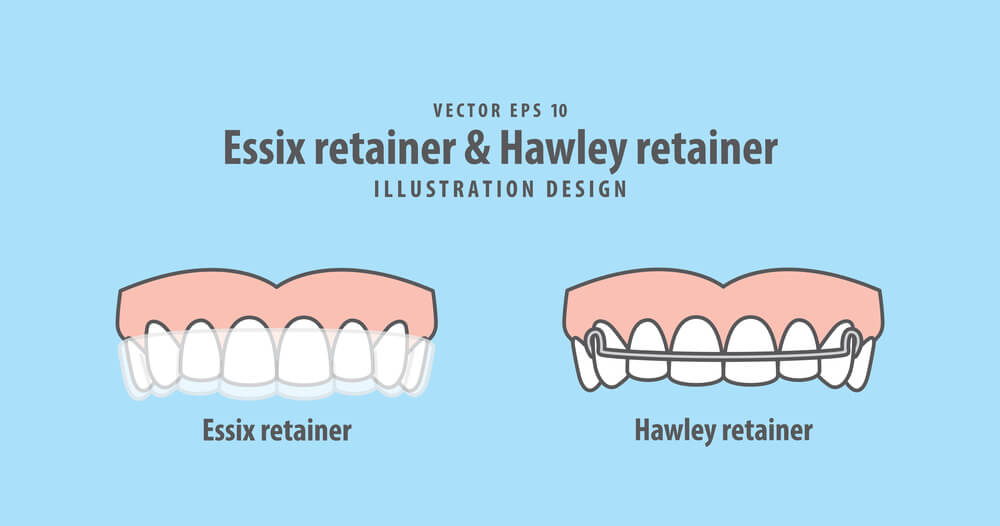 Permanent Retainer Essix and Hawley