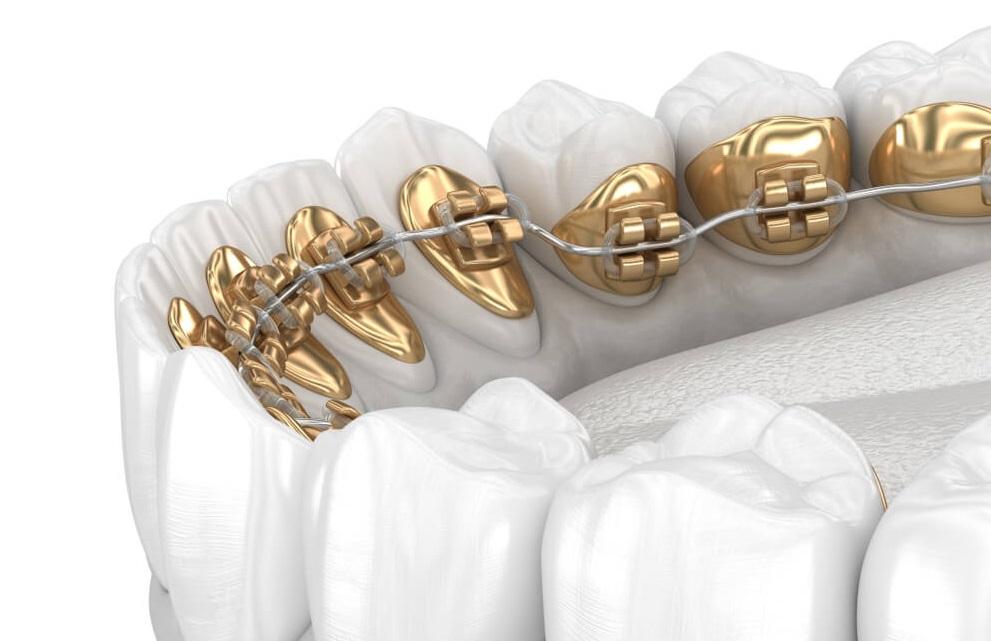 Permanent Retainer lingual braces