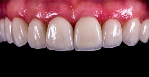 Permanent retainer after Invisalign