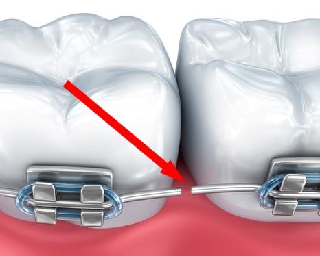 Permanent Retainer broken braces