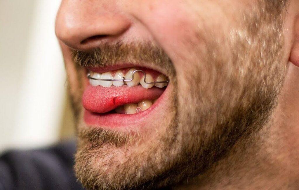 Permanent retainer cutting tongue