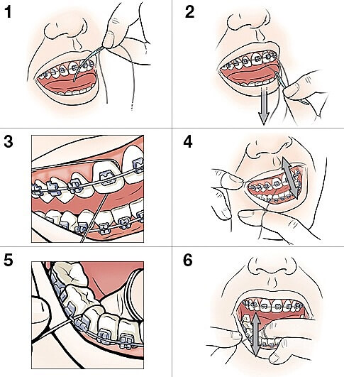 Permanent Retainer how to floss