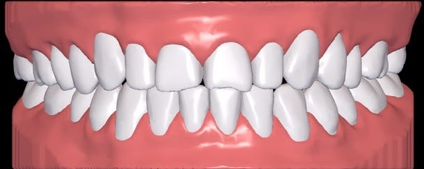 Teeth Shift after Braces