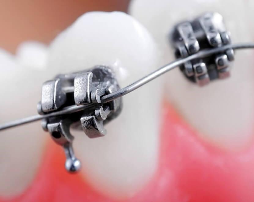 Permanent Retainer braces