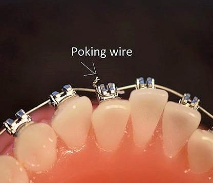 Wire Poking