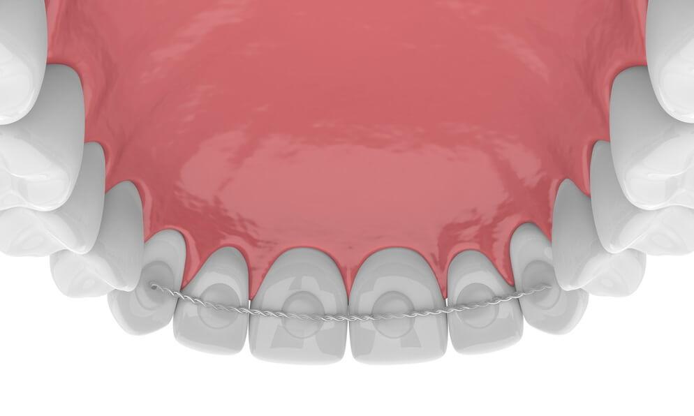 Permanent retainer top teeth